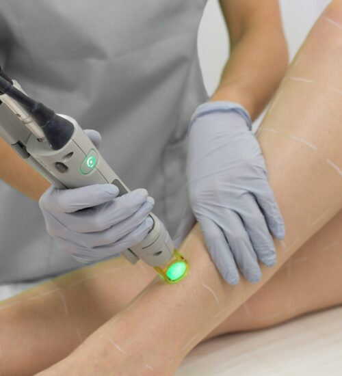 Laser for Veins in progress at the training clinic on the Gold Coast